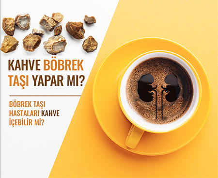 Dr Kadir | Tepeler | Üroloji | Doktoru | böbrek taşı | kahve |kahve böbrek taşı yapar mı | taşsız Hayat