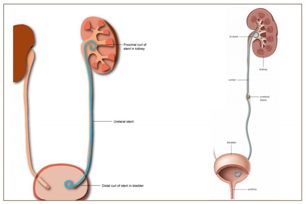 Flexible-sistoskop-yardimiyla-stent-nasil-cikarilir-Tassiz-Hayat-Dr-Kadir-Tepeler-Urolife